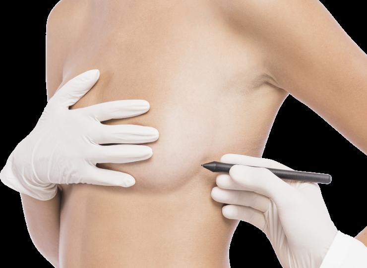 Tratamiento cirugia Slider
