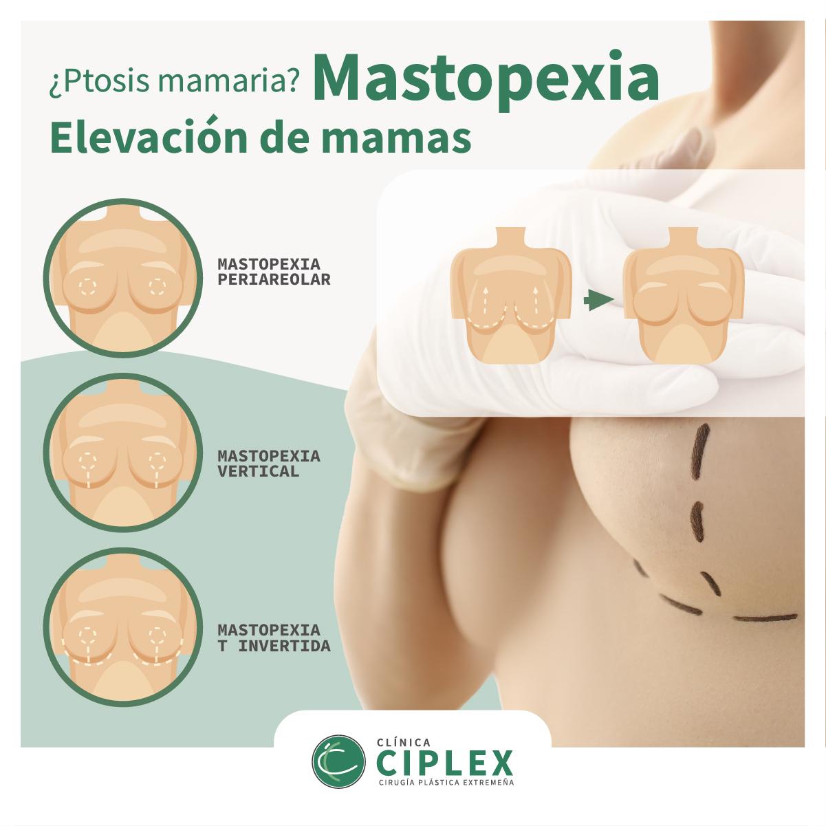 ¿Ptosis mamaria? Mastopexia: elevación de mamas